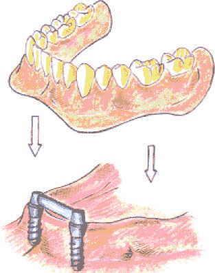 Klikgebit (gebit op implantaten)
